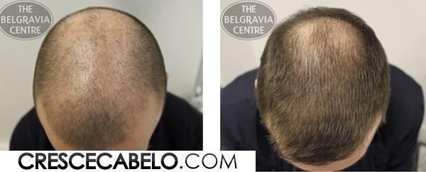 calvicie-queda-de-cabelo