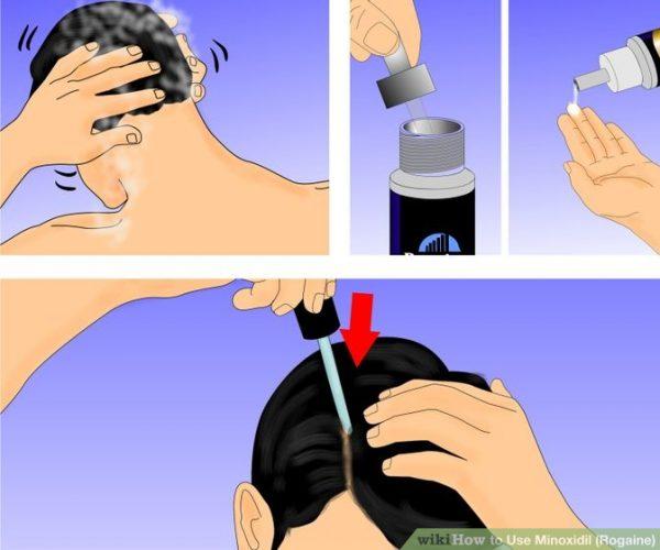 como-usar-minoxidil