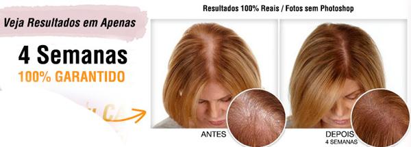 Viva Hair Antes e Depois