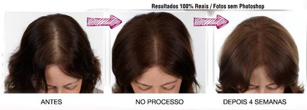 viva-hair-funciona-resultado