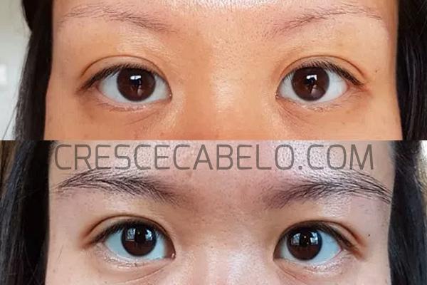 foto antes e depois minoxidil sobrancelha